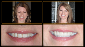 anterior veneers before and after